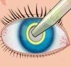 Cirurgia de olhos