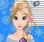 Implante de cabelo da Elsa