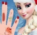 Cuidar da mão da Princesa Elsa