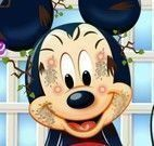 Limpeza de pele do Mickey