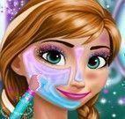 Anna Frozen tratamento de pele
