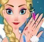 Elsa cuidar da mão