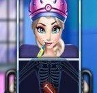 Elsa Frozen fazer cirurgia