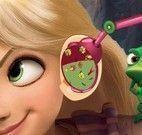 Rapunzel médico do ouvido