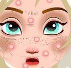Elsa tirar espinha