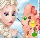 Médico do pé da Elsa