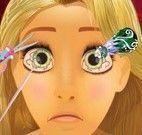 Rapunzel médica dos olhos