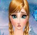 Anna Frozen cirurgia do estômago
