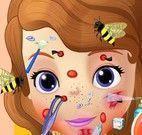 Princesa Sofia tratamento do rosto