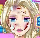 Elsa cirurgia do rosto