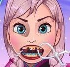 Elsa Frozen no dentista