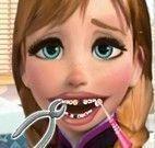 Anna Frozen dentista